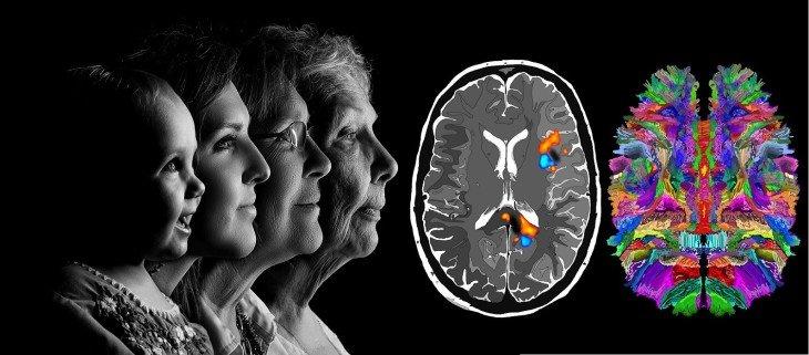 Пройти тест на болезнь Альцгеймера в картинках: какие ваши риски?