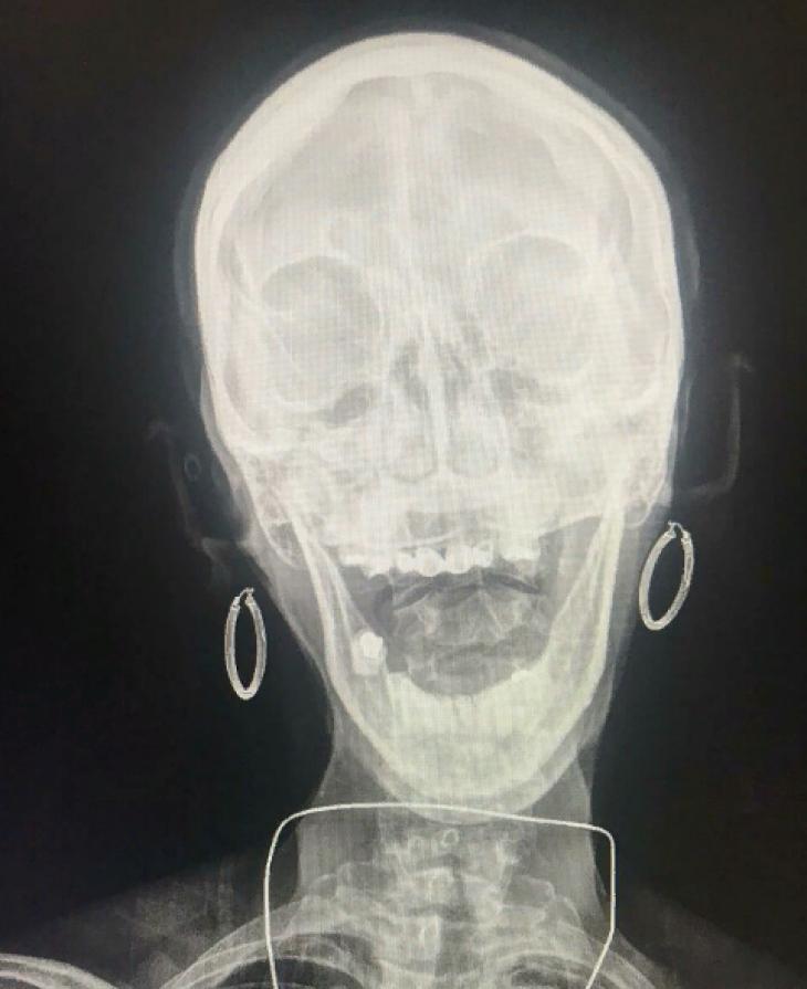 10 занимательных рентгеновских снимков и интересных фактов об «Х»-лучах